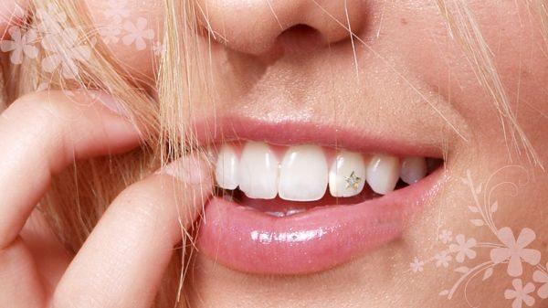 Скайсы. установка скайса на зубы