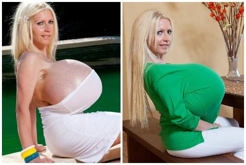Конические импланты груди