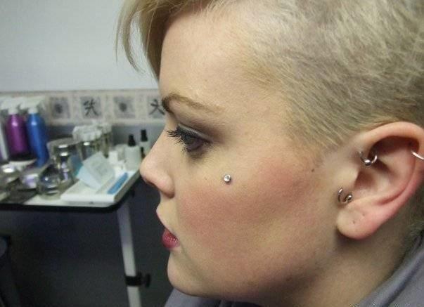 микродермал на лице