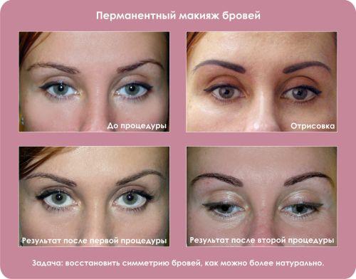 до и после процедуры перманента бровей