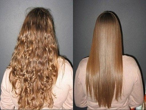 до и после процедуры