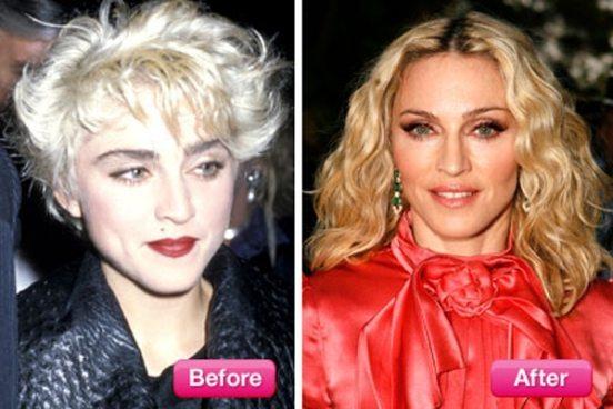 Мадонна в начале карьеры и сейчас