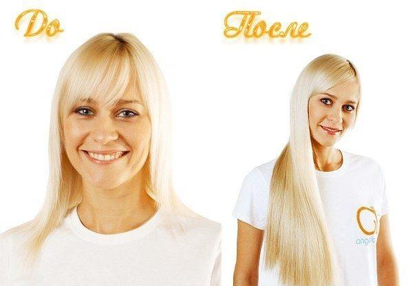 блондинка до и после процедуры