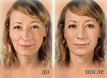 до и после озонотерапии лица