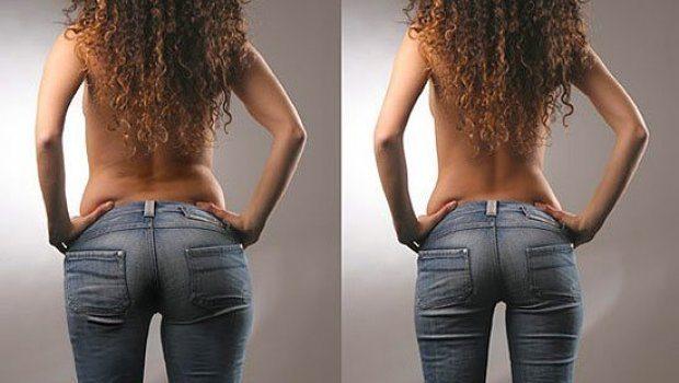 до и после процедуры похудательной озонотерапии