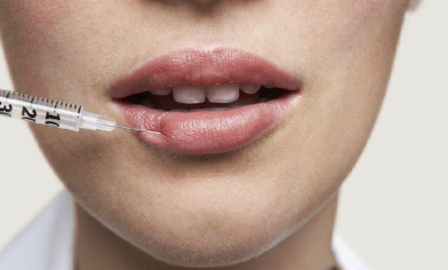 инъекция в губы