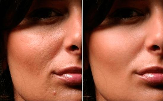 кожа без недостатков