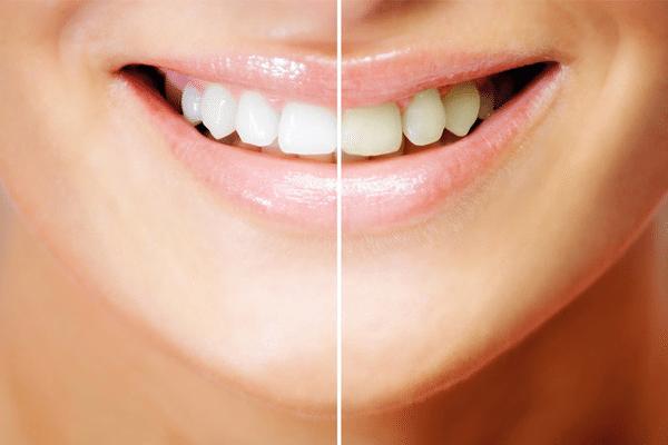 до и после отбеливающих процедур