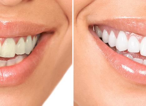 зубки до и после сеанса с эйр флоу