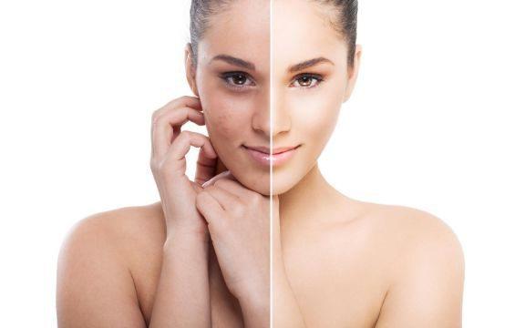 кожа лица до и после сеансов чистки
