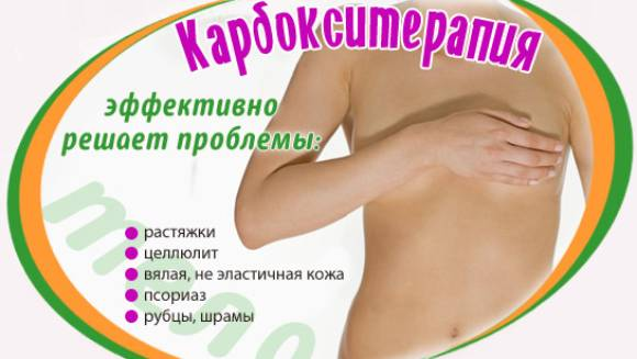 карбокситерапия тела