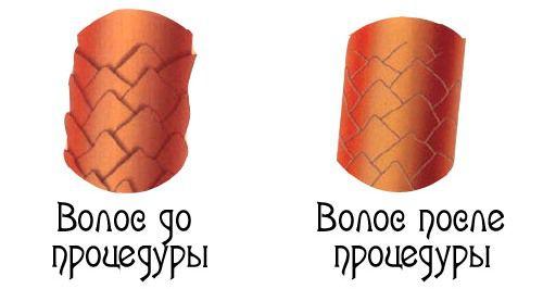 до и после процедуры брюляж