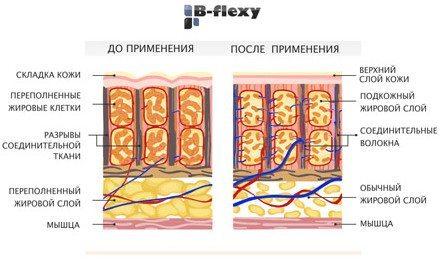 действие аппарата на кожу