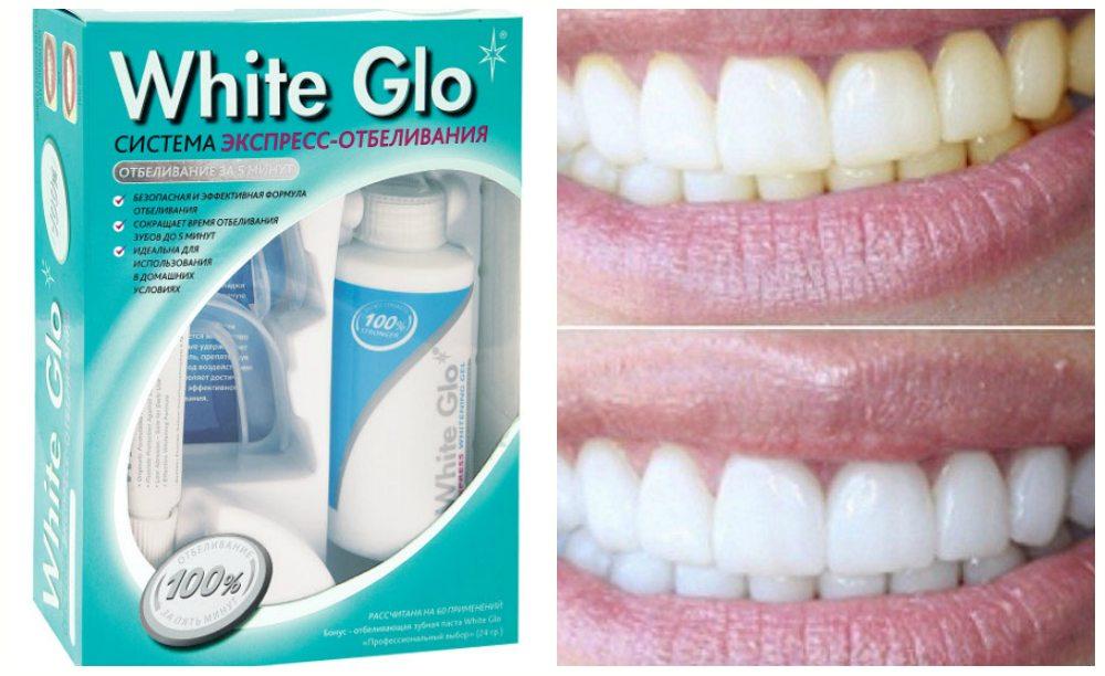 White Glo для домашнего применения