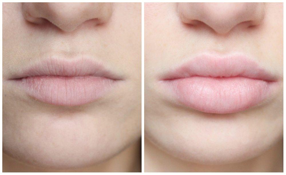 до и после увеличения губ гиалуроновой кислотой