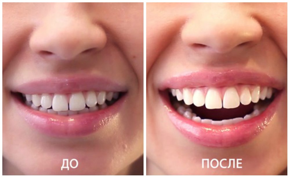результат отбеливания до и после