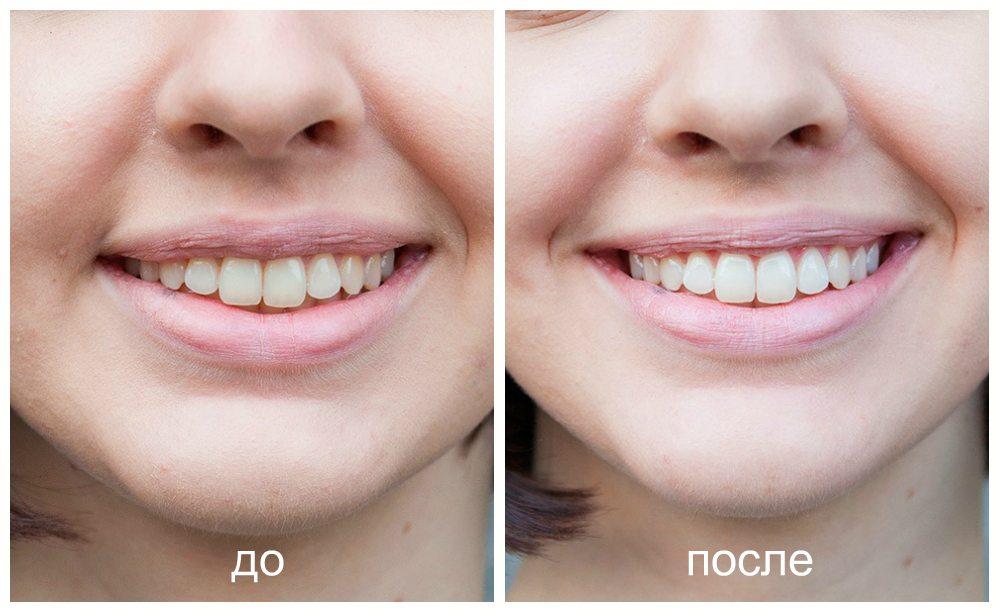 zoom фото до и после