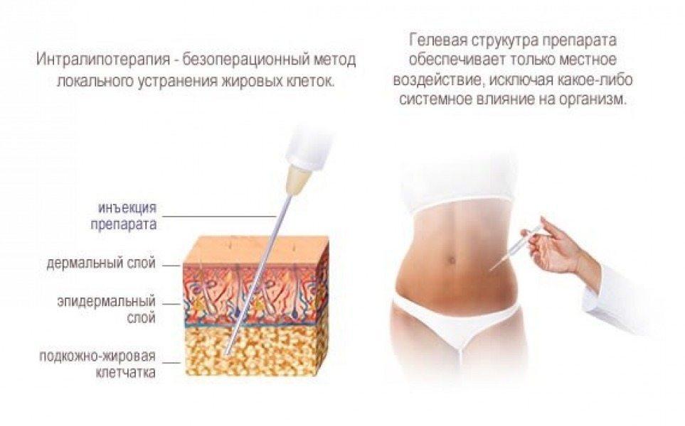 информация о интралипотерапии