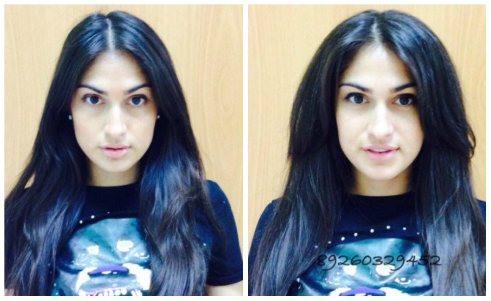 фото до и после Бустап