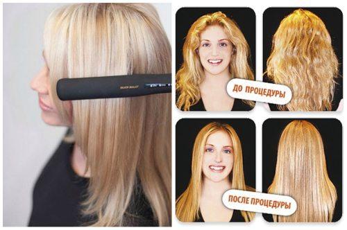 Отзывы протезирование волос lanza