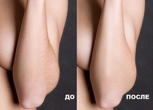 женские предплечья до и после средства