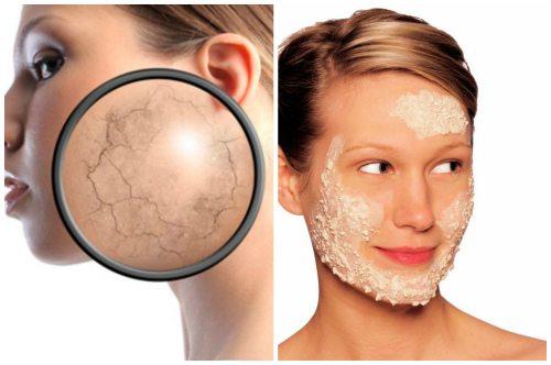 нанесение масочки на сухую кожу