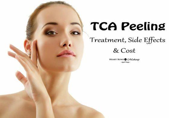 TCA Peeling