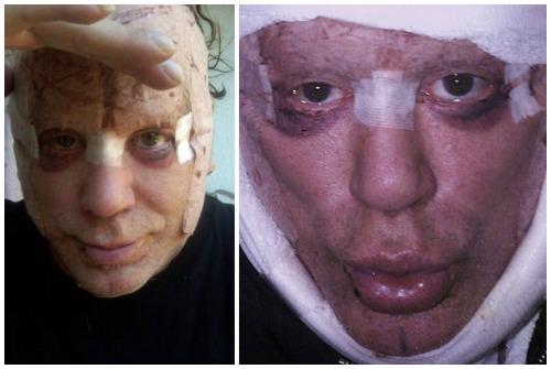 фото после операции