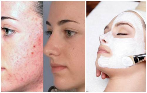 идеальная кожа после химического пилинга