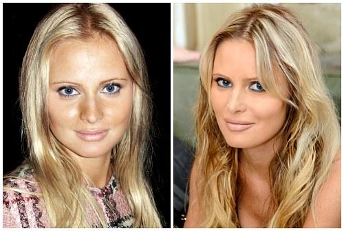 Дана Александровна после уколов красоты