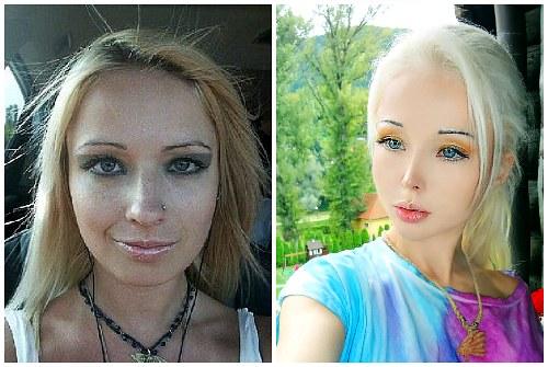 разница после уколов красоты