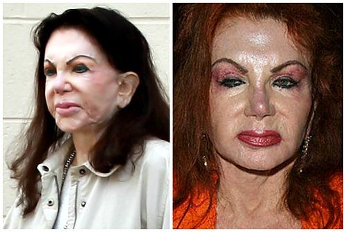 до и после коррекции лица