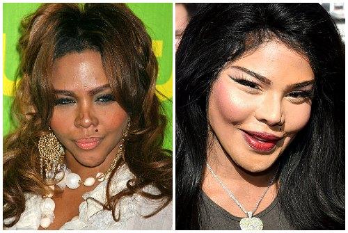 до и после пластики лица