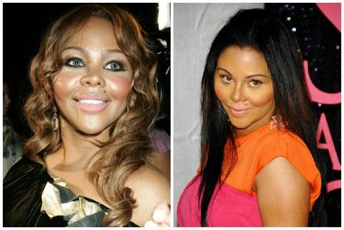 до и после уколов красоты