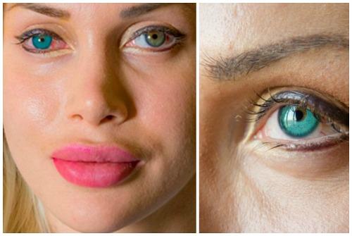 имплантаты и изменение цвета глаз
