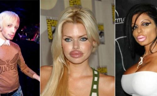 возможные последствия ботокса в губах