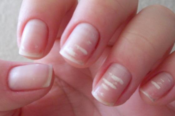 Что означают белые пятна на ногтях по