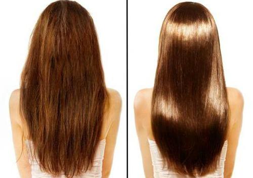 до и после применения botoxa