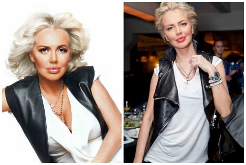 до и после уменьшения груди