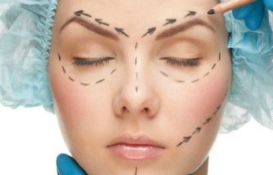 метки на лице перед пластикой