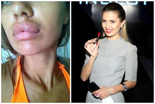 метаморфозы губ