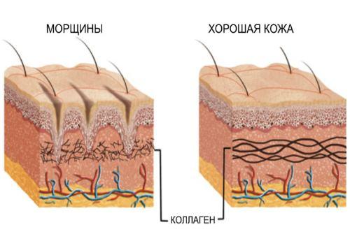 анатомия морщин
