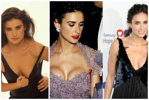 изменение груди