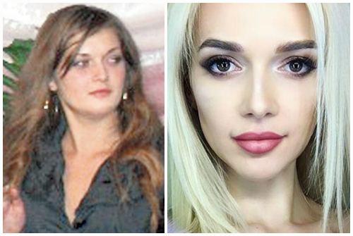 лицо до и после похудения