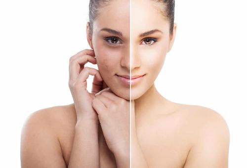 очищение и омоложение кожи